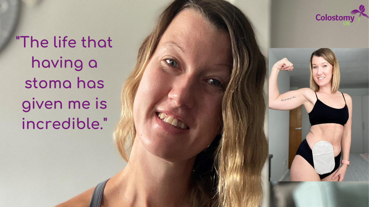 Sarah's stoma story – My incredible life with a stoma